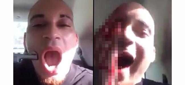 Άντρας αυτοπυροβολήθηκε στο πρόσωπο για να γίνει γνωστό στα social media! (Βίντεο)